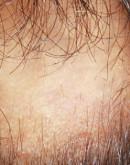 'Очаговая алопеция, гнездное облысение – причины выпадения волос, заболевания