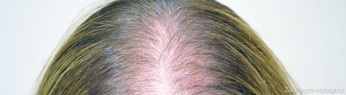 'Диффузное выпадение волос у женщин — причины алопеции и лечение
