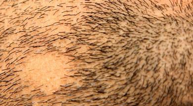 'Алопеция бороды у мужчин – как лечить облысение подбородка?