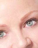 'Тотальная алопеция – полное облысение, причины и лечение