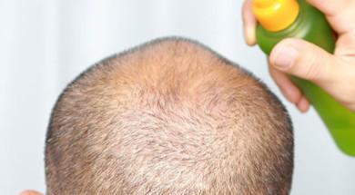 'Лечение андрогенной алопеции у мужчин