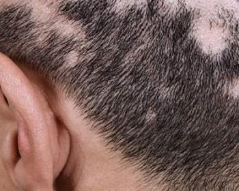 'Сифилитическая алопеция – выпадение волос при сифилисе, признаки и лечение