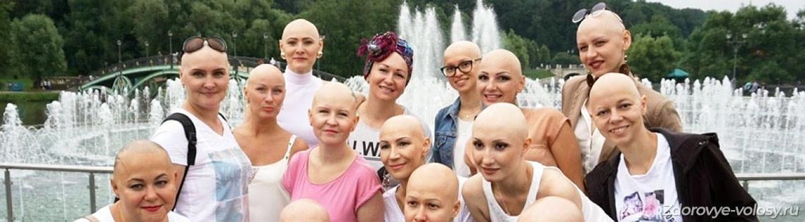 'Аутоиммунная алопеция – причины выпадения волос и лечение